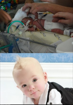 A year ago, my son was born 1lb, 12oz, and given a 20% chance to live