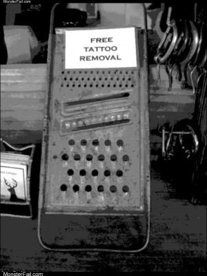 Free tattoo removal