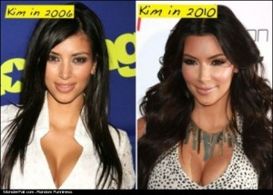 Kim Plastic Surgery Fail or WIN