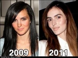 Plastic Surgery FAIL The New Face of Lindsay Lohans Sister Ali Lohan