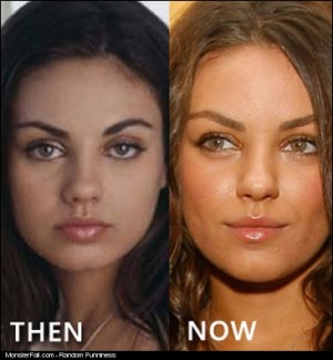 Mila Kunis Before And After The Plastic Surgery