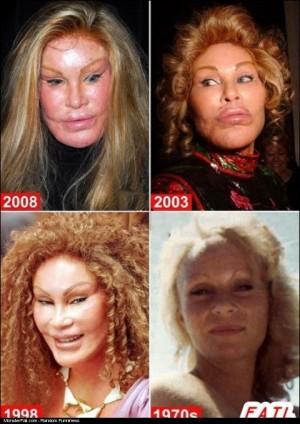 Monster Plastic Surgery FAIL