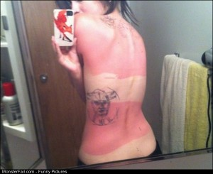 Pics Amazing Sunburns