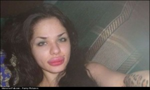 Something Has Bitten Her Lips And As An Allergic Reaction She Got A Cheetah Tattoo On Her Arm