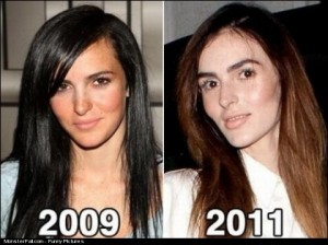 Plastic Surgery FAIL The New Face of Lindsay Lohans Sister Ali Lohan