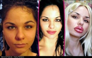 Monster plastic surgery FAIL What the